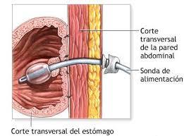 Gastrostomia endoscópica