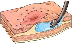 Resección endoscópica submucosa