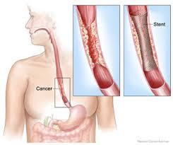 Colocación de stents digestivos